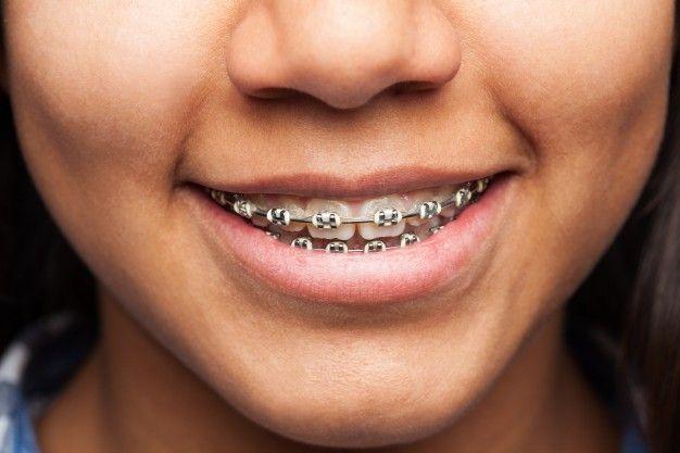 Odontología conservadora en Espejo sonrisa-de-una-mujer_1149-1433