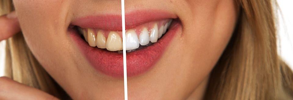 Blanqueamientos dentales en Espejo tooth-2414909_960_720