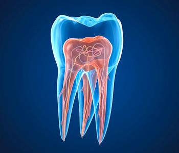 Endodoncia endodoncia-2