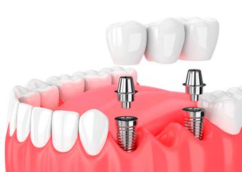 Implantologia implante-1