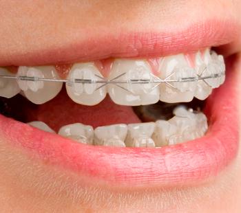Ortodoncia ortodoncia-2