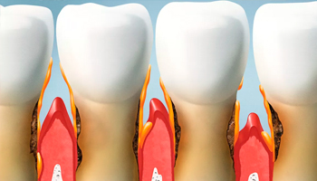 Periodoncia periodoncia-2