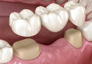 Prótesis dentales 02